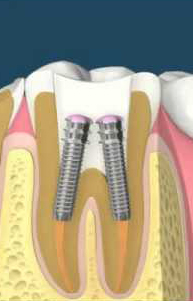 Tooth after root canal treatment.